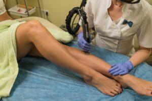 эпиляция ног лазером