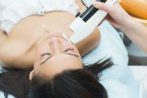 лечение угрей лазером