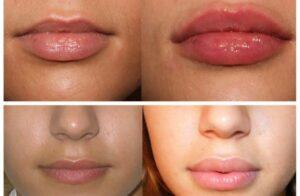 Николаев увеличение губ