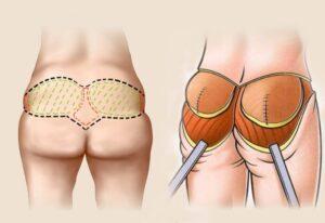 увеличение ягодиц имплантатами