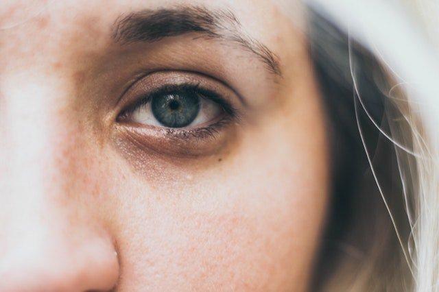 суфы на лице